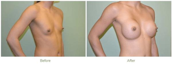 Breast Augmentation Review Plastic Surgeon
